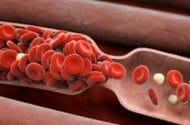 Risk Factors besides Inactivity Trigger Blood Clots on Long Flights