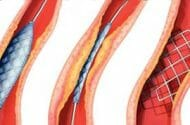 Data: Drug-coated stents carry clot risk