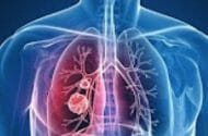 HRT May Up Lung Cancer Risk