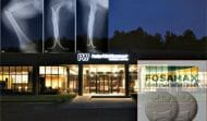 PW Files Suit for Fosamax Femur Fracture Victims