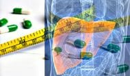 Weight Loss Supplements Risk of Liver Injury