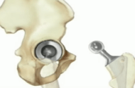 DePuy ASR Hip Replacement Lawsuit Filed on Behalf of Patient