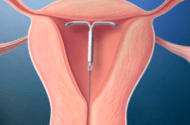 National Law Firm Continues to Investigate Mirena IUD Cases