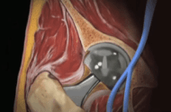 Systemic Cobalt Poisoning Increasingly Recognized with MoM Hip Implants
