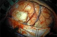 Tysabri Brain Infection Risk