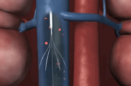 IVC Filter Lawsuits Rising