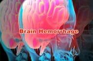 Eliquis Fatal Hemorrhaging