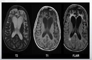Dilantin Linked to Cerebellar Atrophy