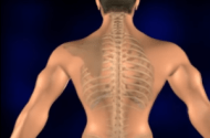Spinal Cord Injury Lawsuits