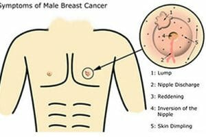 male breast cancer signs symptoms