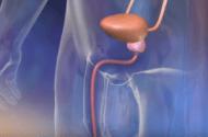 Actos May Raise Bladder Cancer Risk
