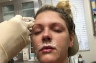 Botox Inquiry Focuses On Possible Bootleg Drug
