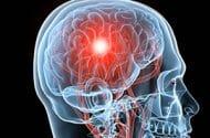 Brain damage case nets large verdict