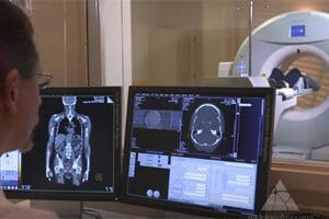 CT Scan Radiation