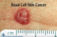 Driving May Increase Risk of Skin Cancer