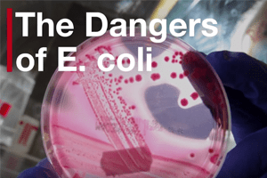 E. Coli Poisoning