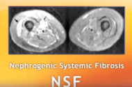 Gadolinium MRI Contrast Dye Link to NSF