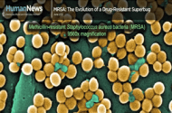 MRSA, Other Drug Resistant Bacteria Emerge as Serious Threat to Public Health