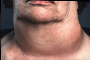 Indian Point Thyroid Cancer Rates