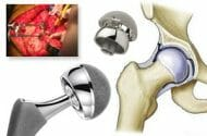 What is hip implant revision surgery and when is it needed?