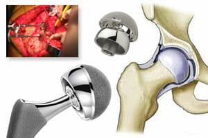 Hip Implant Revision Surgery