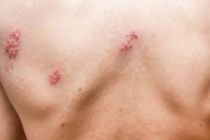 Zostavax Shingles Vaccine