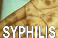 Suit says Guatemalans purposely infected with syphilis