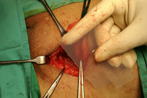 What Is Surgical Mesh That Is Used In Hernia Mesh Surgery?