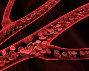 IVC Filters Cleared Without Clinical Trials Performed