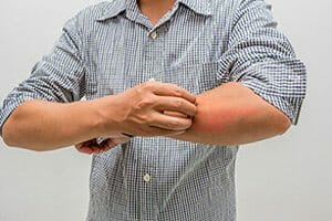 Shingles Vaccine Serious Adverse Event