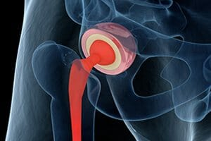 Metallosis, Side Effect of Depuy ASR Hip Implant Device