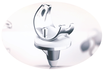 Depuy Implant Lawyers On Your Side To Help Assist You