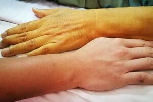 Dangerous Health Problems With Drug Limbrel
