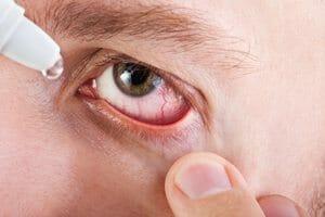 Sterile Eye Irrigation Solution