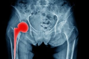 Total Hip Arthroplasty Lawsuit