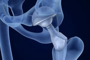 Implants Poisoning Lawsuits