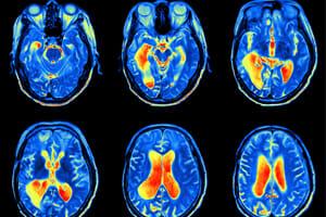 Gadolinium Deposition Disease Cases