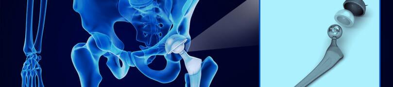 hip implant recall