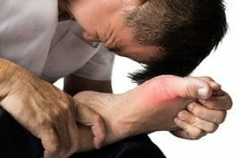 A Man In Pain From Gout Treated By Drugs Like Urinol.