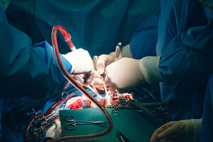 Class I Recall Announced for Two Coronary Dilation Catheters
