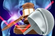 Johnson & Johnson Faces Over 10,000 Lawsuits Over Artificial DePuy Hip Device Claims