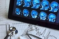 Deadly Error Compels Recall of Brain Scan Device