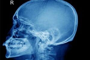 Car accident attorneys discuss head injuries
